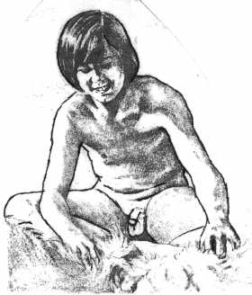 Circumcised boy