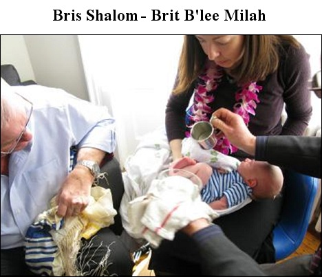 Bris Shalom Brit B'lee Milah